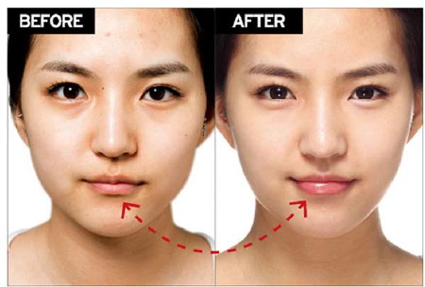 Tiêm Botox, fillers như thế nào, có tác dụng phụ không? 1