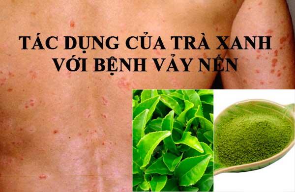 Tác dụng của trà xanh với người mắc bệnh vảy nến
