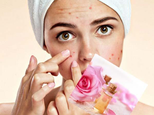 Da mụn có nên sử dụng nước hoa hồng không