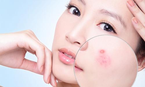 Muối kiểm soát bã nhờn, giúp kháng viêm hiệu quả trong việc điều trị mụn