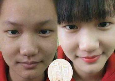 BB Cream Linh Hương có tốt không? 4