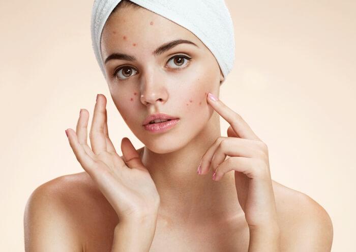 Chọn kem trị mụn phù hợp với làn da