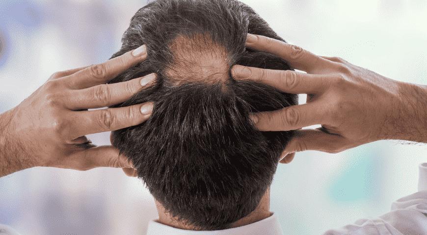 Tổng hợp nguyên nhân rụng tóc nhiều ở cả nam và nữ 1