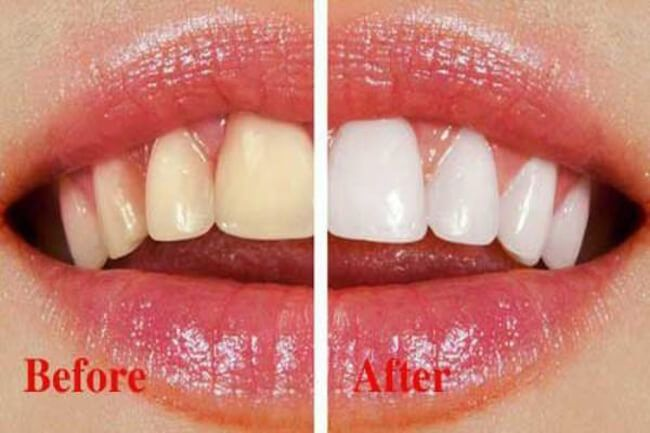 Kem Đánh Răng Nuskin AP24 giải pháp cho hàm răng trắng sáng khỏe mạnh 1