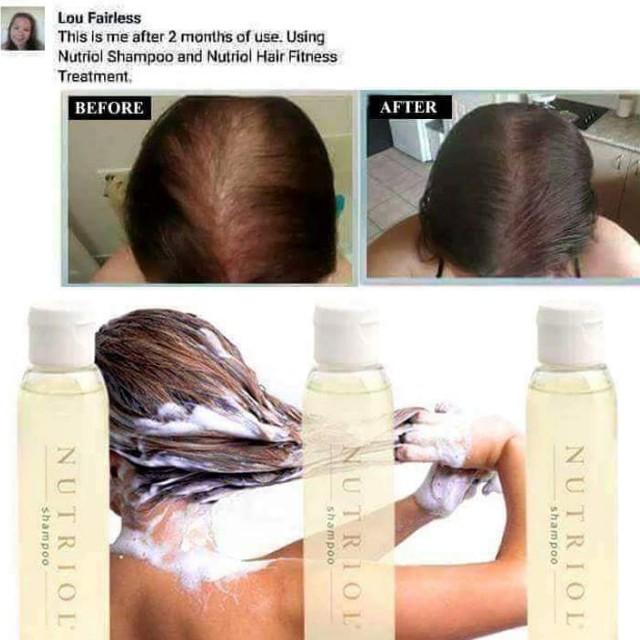 Trị rụng tóc tại nhà hiệu quả như ở spa, bạn đã thử? 2