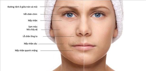 Dấu hiệu dễ nhận thấy nhất của lão hóa da là nếp nhăn