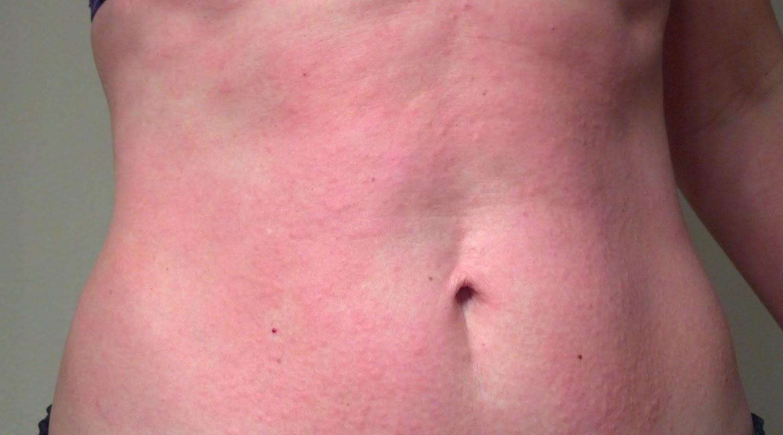 Đôi khi gặp phải trường hợp dị ứng trên da